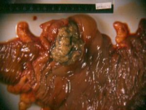 Carcinoma de intestino grueso. Anatomía patológica USACH.